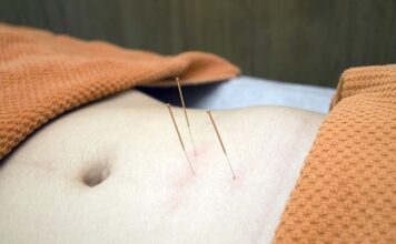 Akupunktura na odchudzanie. Zaproszenie do świata akupunktury